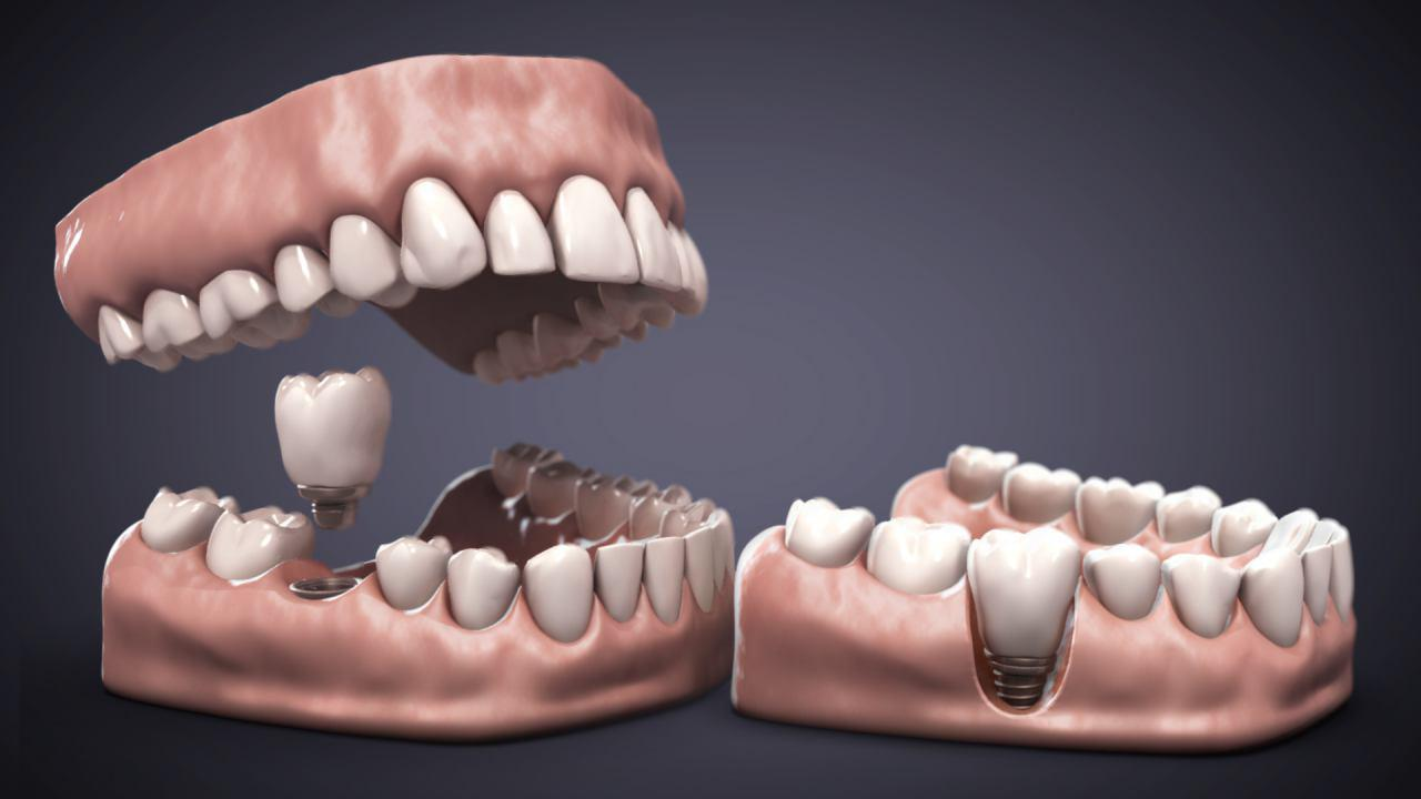 Odontología 3D