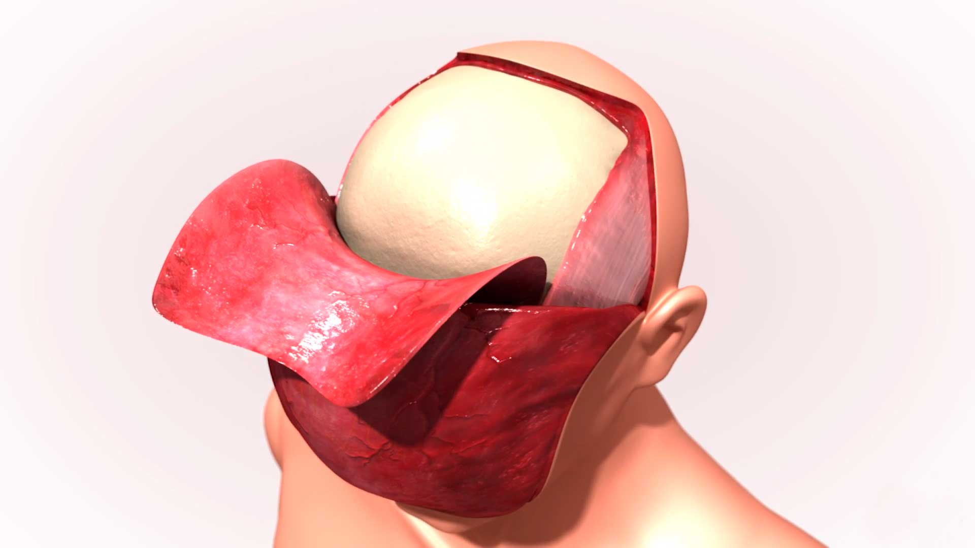 Vídeos de cirugía
