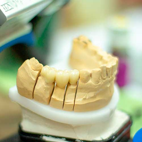 Odontologia-3D-impresion-3d
