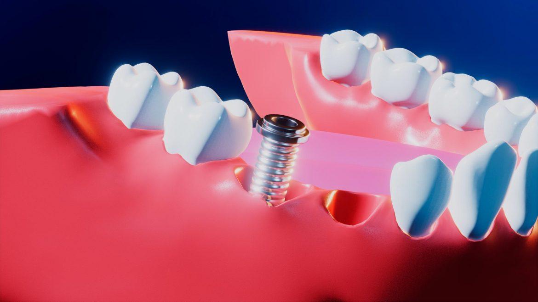 implante-titanio-dental-grupoaudiovisual