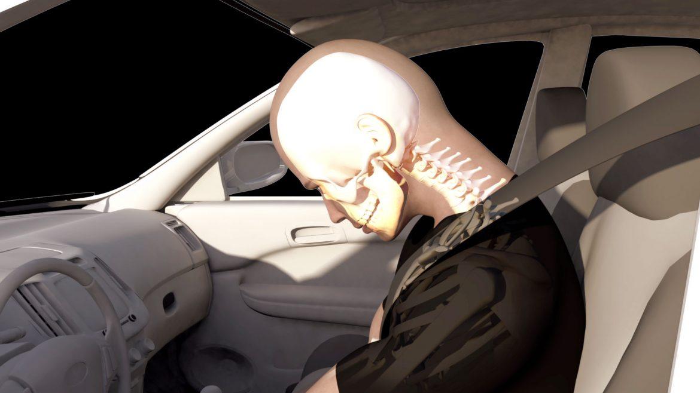 latigazo-cervical-reconstruccion-de-accidente-en-animacion-3d-grupoaudiovisual Vídeos para estrategia de comunicación